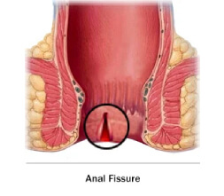 Fissure treatment in Pune