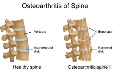 Joint & Spine Disorders (Vata Disorders) treatement in pune